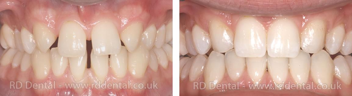 Smile Gallery - RD Dental | Implants, Teeth Whitening